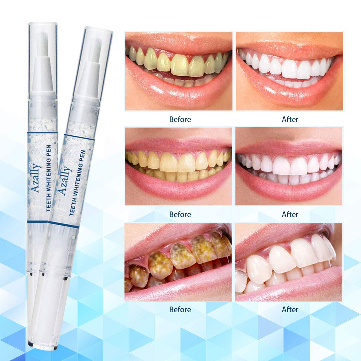 Teeth Whitening Kit, Teeth Whitening Pen, Painless